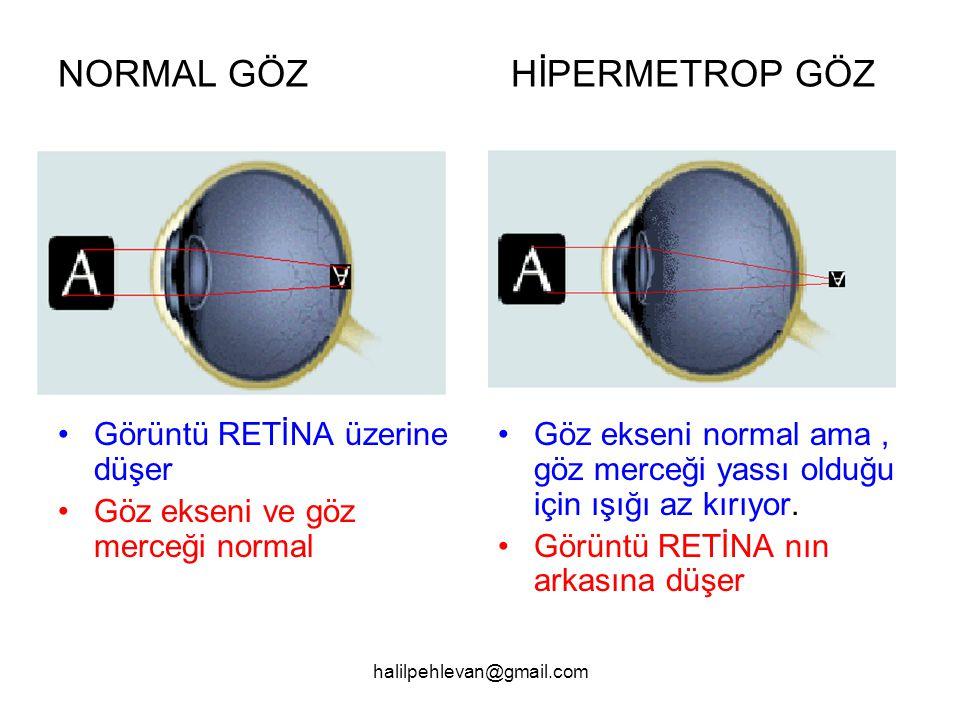 halilpehlevan@gmail.com NORMAL GÖZ HİPERMETROP GÖZ •Göz ekseni normal ama, göz merceği yassı olduğu için ışığı az kırıyor.