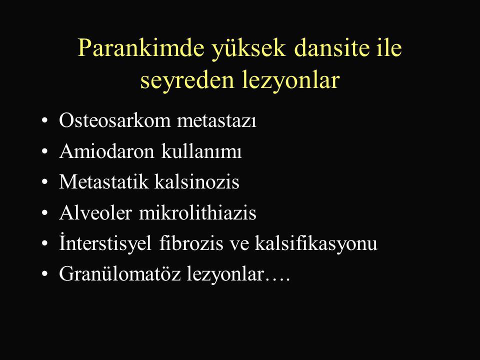 Parankimde yüksek dansite ile seyreden lezyonlar •Osteosarkom metastazı •Amiodaron kullanımı •Metastatik kalsinozis •Alveoler mikrolithiazis •İntersti