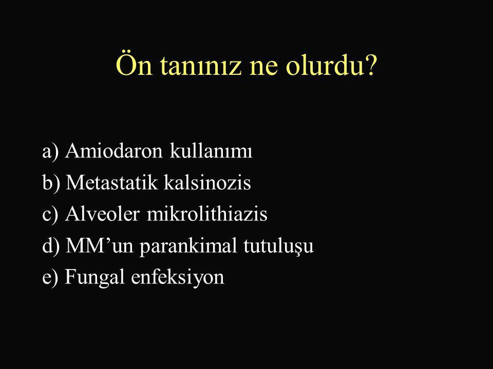 Ön tanınız ne olurdu? a) Amiodaron kullanımı b) Metastatik kalsinozis c) Alveoler mikrolithiazis d) MM'un parankimal tutuluşu e) Fungal enfeksiyon