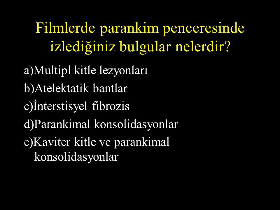 Filmlerde parankim penceresinde izlediğiniz bulgular nelerdir? a)Multipl kitle lezyonları b)Atelektatik bantlar c)İnterstisyel fibrozis d)Parankimal k