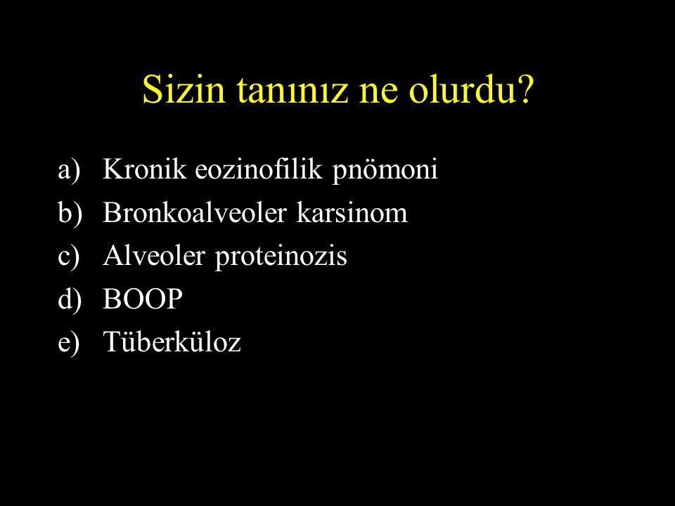 Sizin tanınız ne olurdu? a)Kronik eozinofilik pnömoni b)Bronkoalveoler karsinom c)Alveoler proteinozis d)BOOP e)Tüberküloz