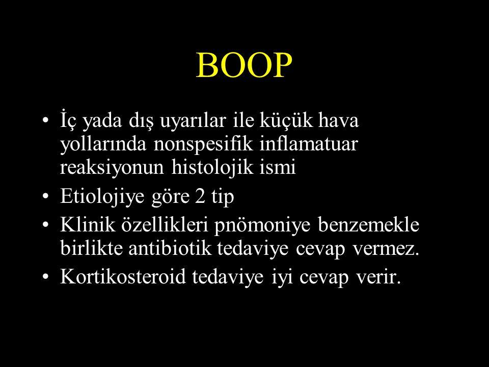 BOOP •İç yada dış uyarılar ile küçük hava yollarında nonspesifik inflamatuar reaksiyonun histolojik ismi •Etiolojiye göre 2 tip •Klinik özellikleri pn