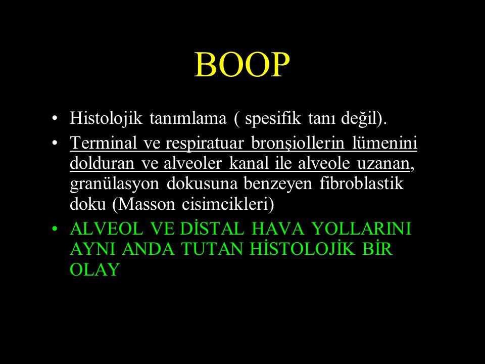 BOOP •Histolojik tanımlama ( spesifik tanı değil). •Terminal ve respiratuar bronşiollerin lümenini dolduran ve alveoler kanal ile alveole uzanan, gran