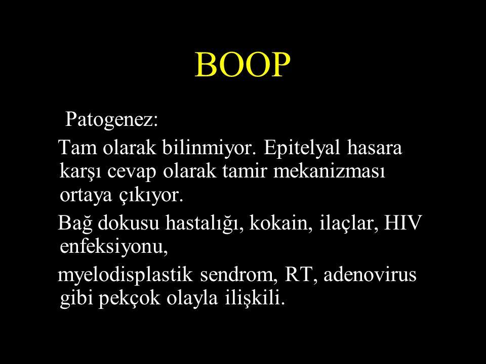 BOOP • Patogenez: Tam olarak bilinmiyor. Epitelyal hasara karşı cevap olarak tamir mekanizması ortaya çıkıyor. Bağ dokusu hastalığı, kokain, ilaçlar,