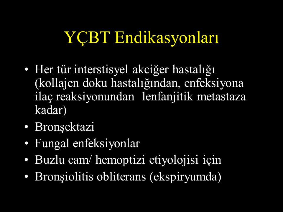 YÇBT Endikasyonları •Her tür interstisyel akciğer hastalığı (kollajen doku hastalığından, enfeksiyona ilaç reaksiyonundan lenfanjitik metastaza kadar)