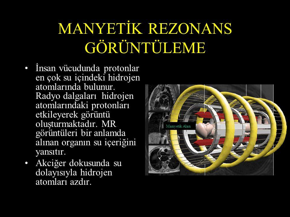 MANYETİK REZONANS GÖRÜNTÜLEME •İnsan vücudunda protonlar en çok su içindeki hidrojen atomlarında bulunur. Radyo dalgaları hidrojen atomlarındaki proto