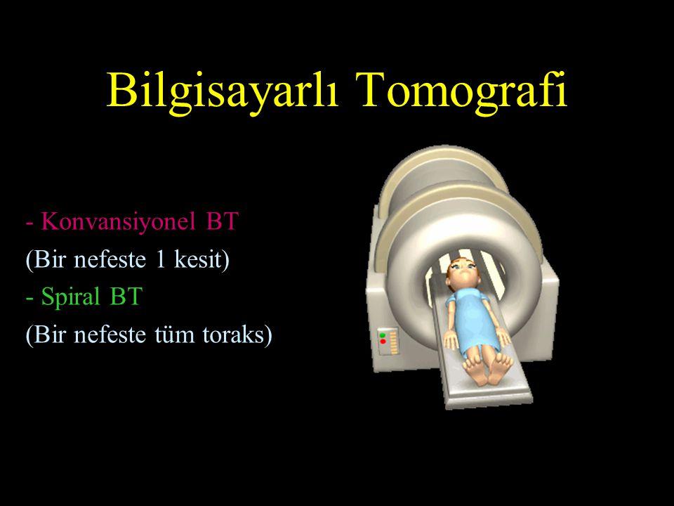 Bilgisayarlı Tomografi - Konvansiyonel BT (Bir nefeste 1 kesit) - Spiral BT (Bir nefeste tüm toraks)