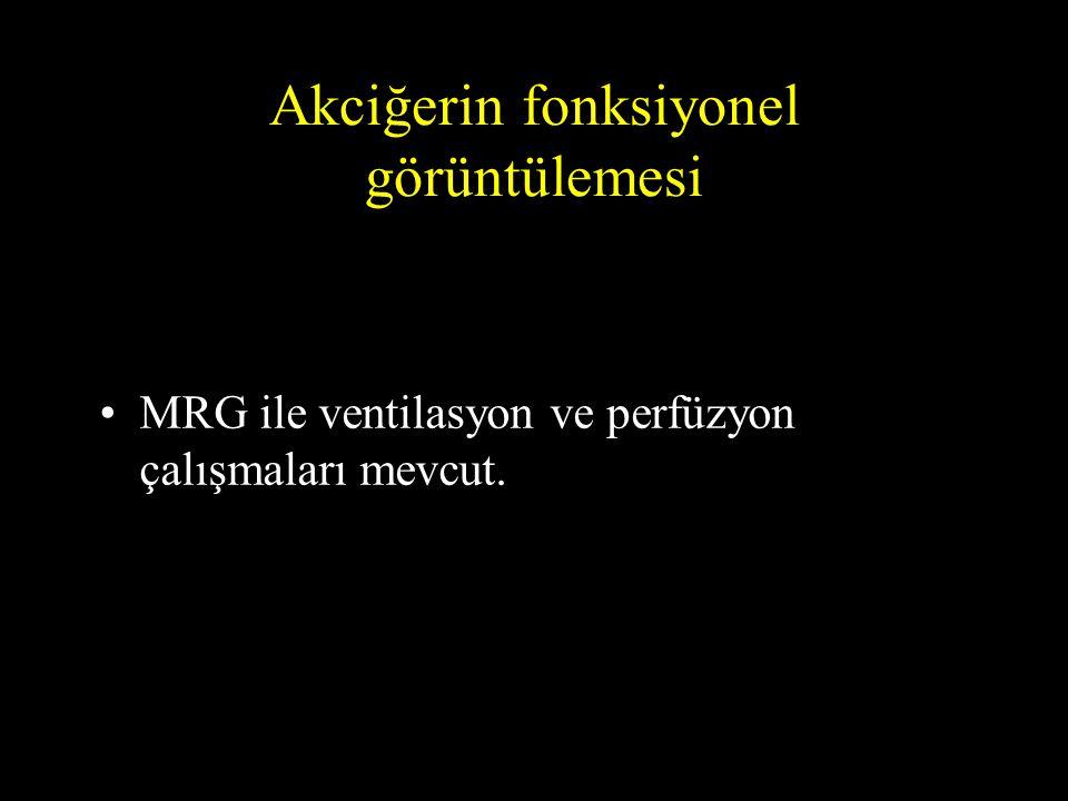 Akciğerin fonksiyonel görüntülemesi •MRG ile ventilasyon ve perfüzyon çalışmaları mevcut.