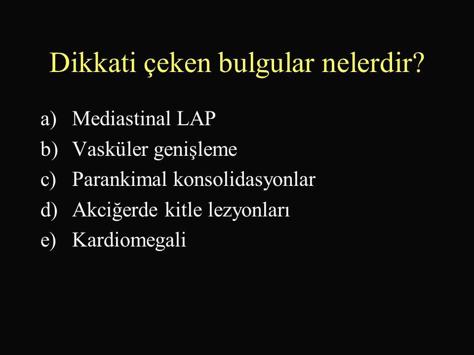 Dikkati çeken bulgular nelerdir? a)Mediastinal LAP b)Vasküler genişleme c)Parankimal konsolidasyonlar d)Akciğerde kitle lezyonları e)Kardiomegali
