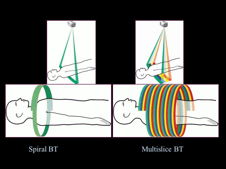 Spiral BTMultislice BT