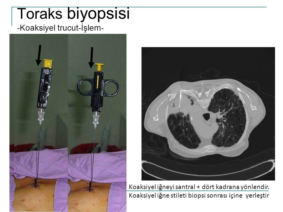 Toraks biyopsisi -Koaksiyel trucut-İşlem- Koaksiyel iğneyi santral + dört kadrana yönlendir.