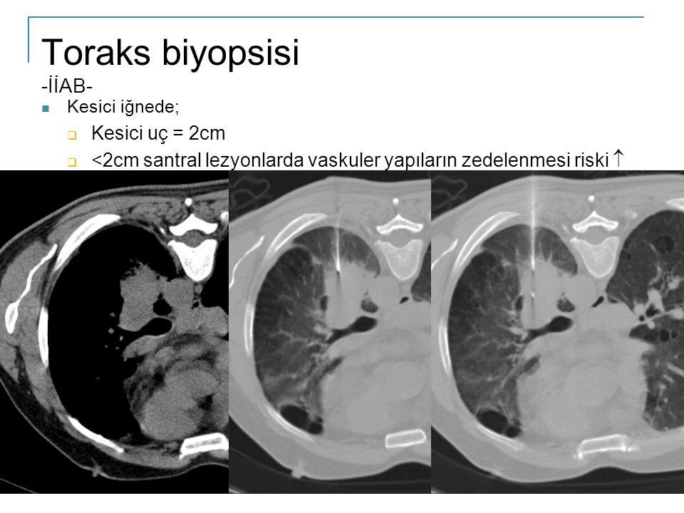 Toraks biyopsisi -İİAB-  Kesici iğnede;  Kesici uç = 2cm  <2cm santral lezyonlarda vaskuler yapıların zedelenmesi riski 