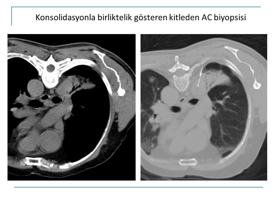Konsolidasyonla birliktelik gösteren kitleden AC biyopsisi