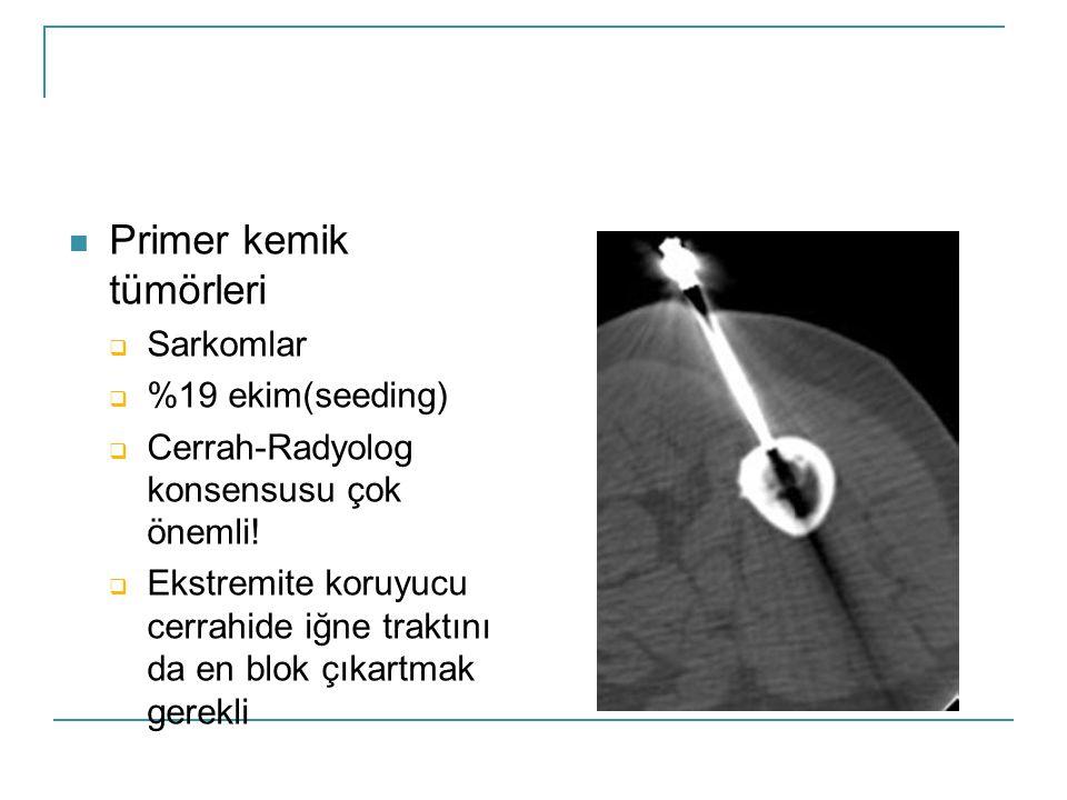  Primer kemik tümörleri  Sarkomlar  %19 ekim(seeding)  Cerrah-Radyolog konsensusu çok önemli.