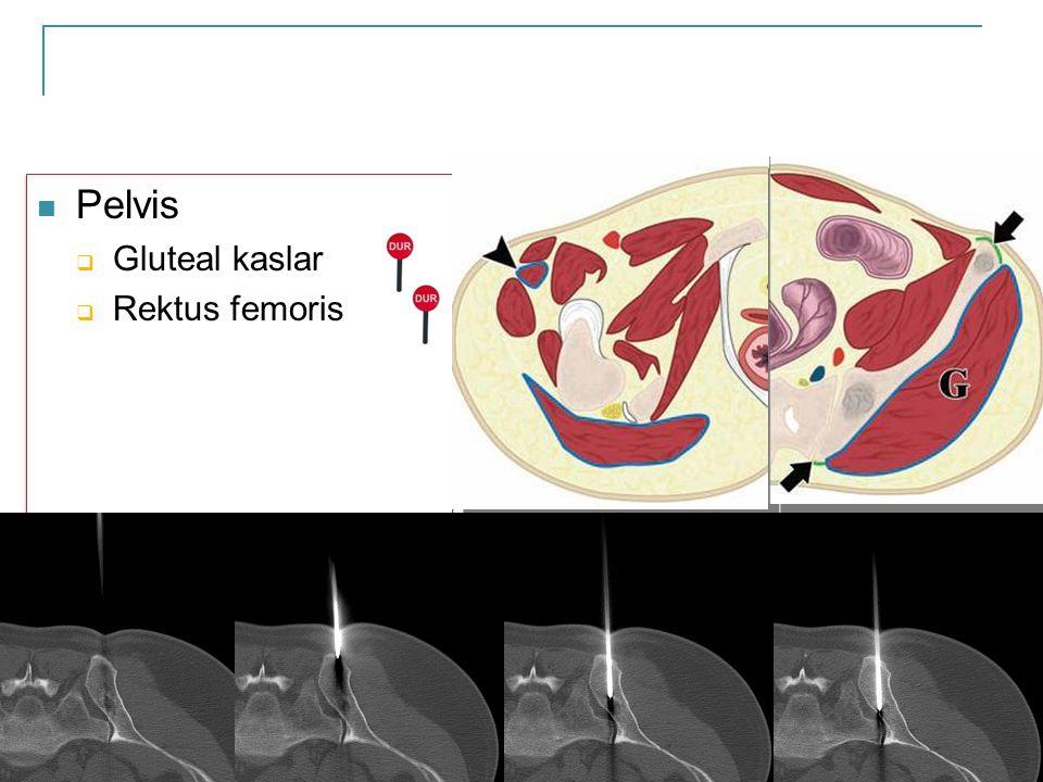  Pelvis  Gluteal kaslar  Rektus femoris  Pelvis  Gluteal kaslar  Rektus femoris