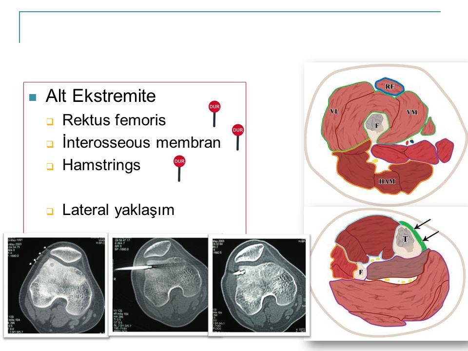  Alt Ekstremite  Rektus femoris  İnterosseous membran  Hamstrings  Lateral yaklaşım  Alt Ekstremite  Rektus femoris  İnterosseous membran  Hamstrings  Lateral yaklaşım