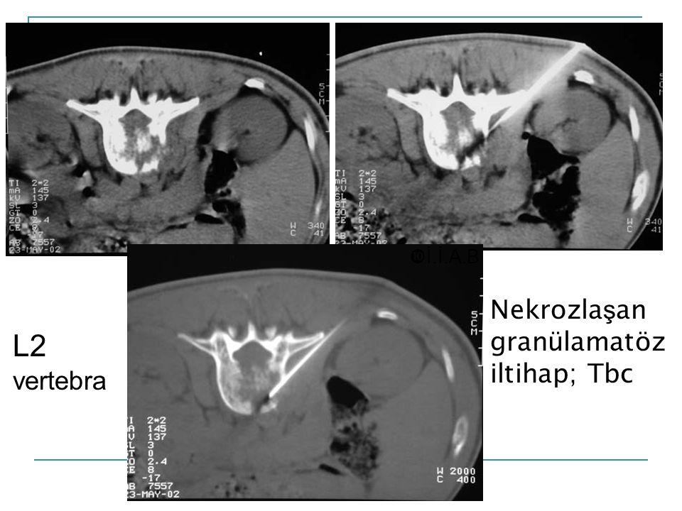 L2 vertebra Nekrozla ş an granülamatöz iltihap; Tbc  İ.İ.A.B