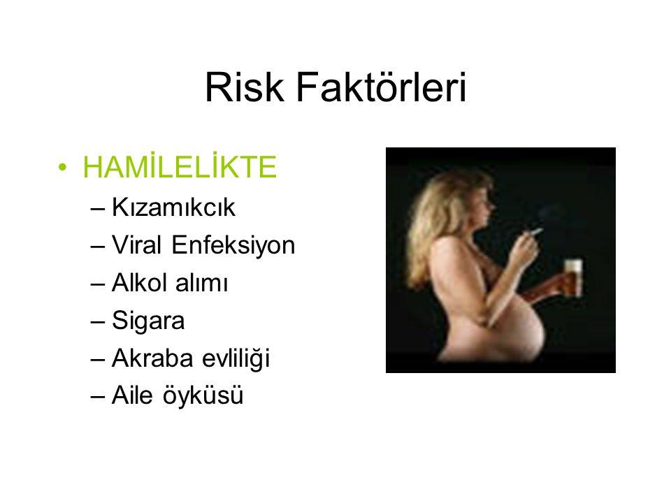 Risk Faktörleri •HAMİLELİKTE –Kızamıkcık –Viral Enfeksiyon –Alkol alımı –Sigara –Akraba evliliği –Aile öyküsü