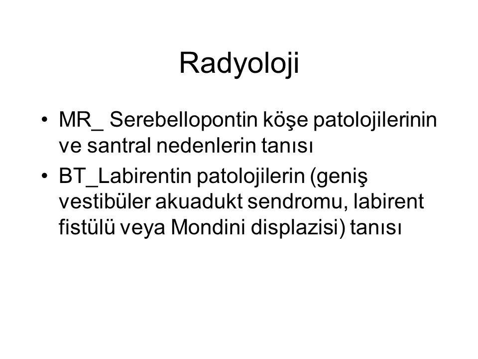 Radyoloji •MR_ Serebellopontin köşe patolojilerinin ve santral nedenlerin tanısı •BT_Labirentin patolojilerin (geniş vestibüler akuadukt sendromu, lab