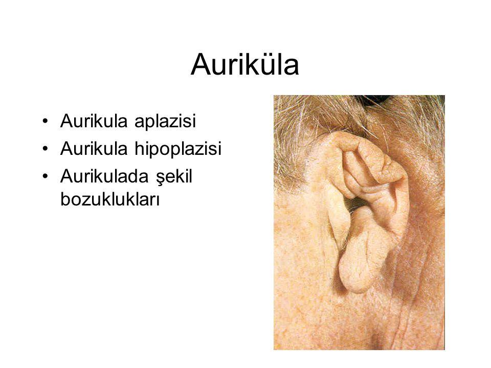 Auriküla •Aurikula aplazisi •Aurikula hipoplazisi •Aurikulada şekil bozuklukları