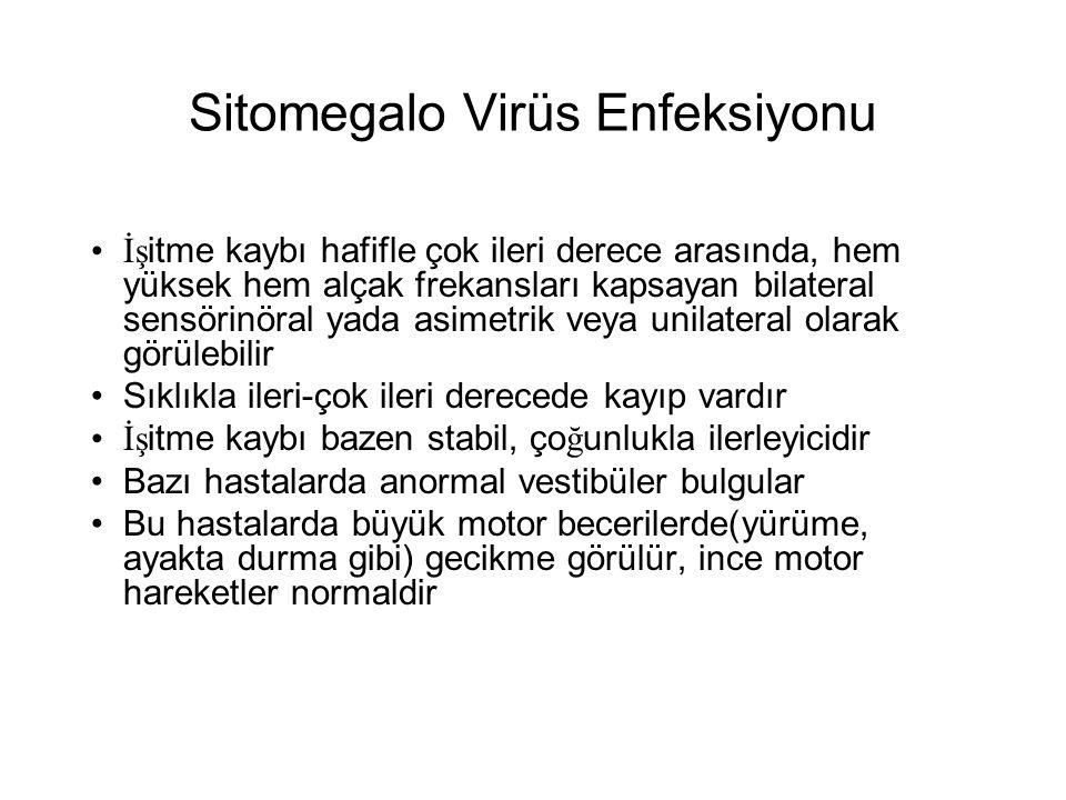 Sitomegalo Virüs Enfeksiyonu •İş itme kaybı hafifle çok ileri derece arasında, hem yüksek hem alçak frekansları kapsayan bilateral sensörinöral yada a