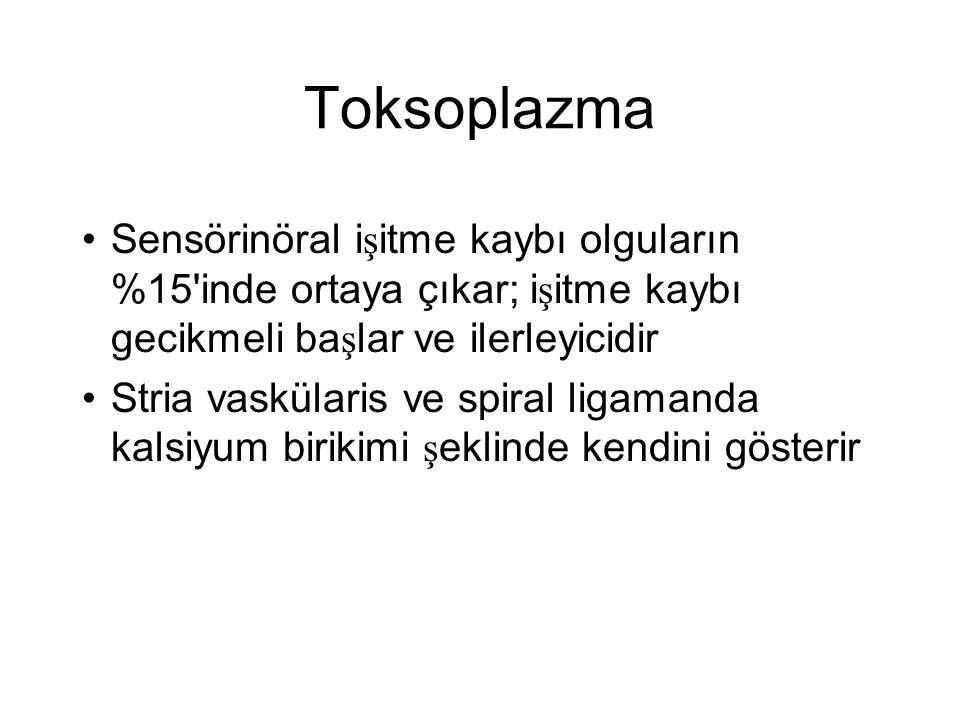 Toksoplazma •Sensörinöral i ş itme kaybı olguların %15'inde ortaya çıkar; i ş itme kaybı gecikmeli ba ş lar ve ilerleyicidir •Stria vaskülaris ve spir