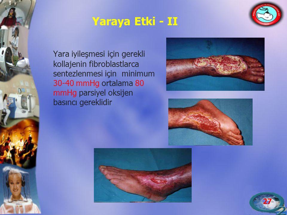 27 Yaraya Etki - II Yara iyileşmesi için gerekli kollajenin fibroblastlarca sentezlenmesi için minimum 30-40 mmHg ortalama 80 mmHg parsiyel oksijen ba