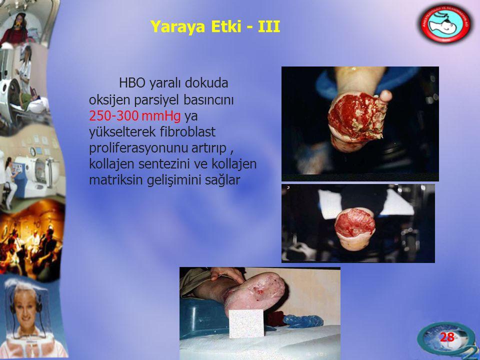 28 Yaraya Etki - III HBO yaralı dokuda oksijen parsiyel basıncını 250-300 mmHg ya yükselterek fibroblast proliferasyonunu artırıp, kollajen sentezini