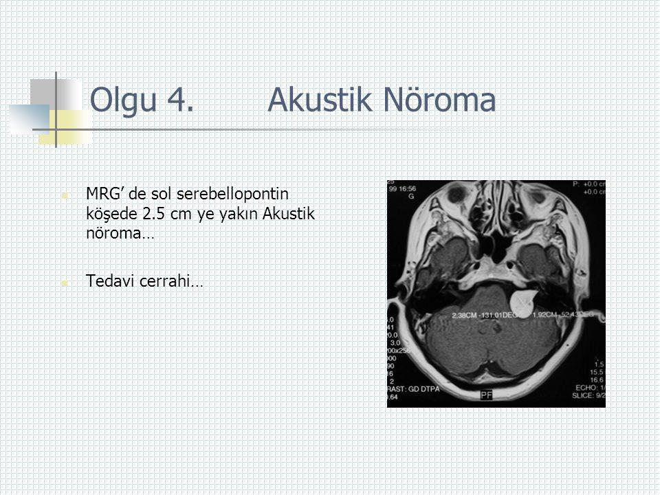Olgu 4. Akustik Nöroma  MRG' de sol serebellopontin köşede 2.5 cm ye yakın Akustik nöroma…  Tedavi cerrahi…