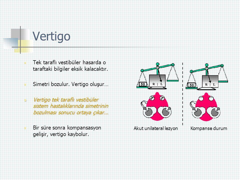 Vertigo  Tek taraflı vestibüler hasarda o taraftaki bilgiler eksik kalacaktır.  Simetri bozulur. Vertigo oluşur…  Vertigo tek taraflı vestibüler si