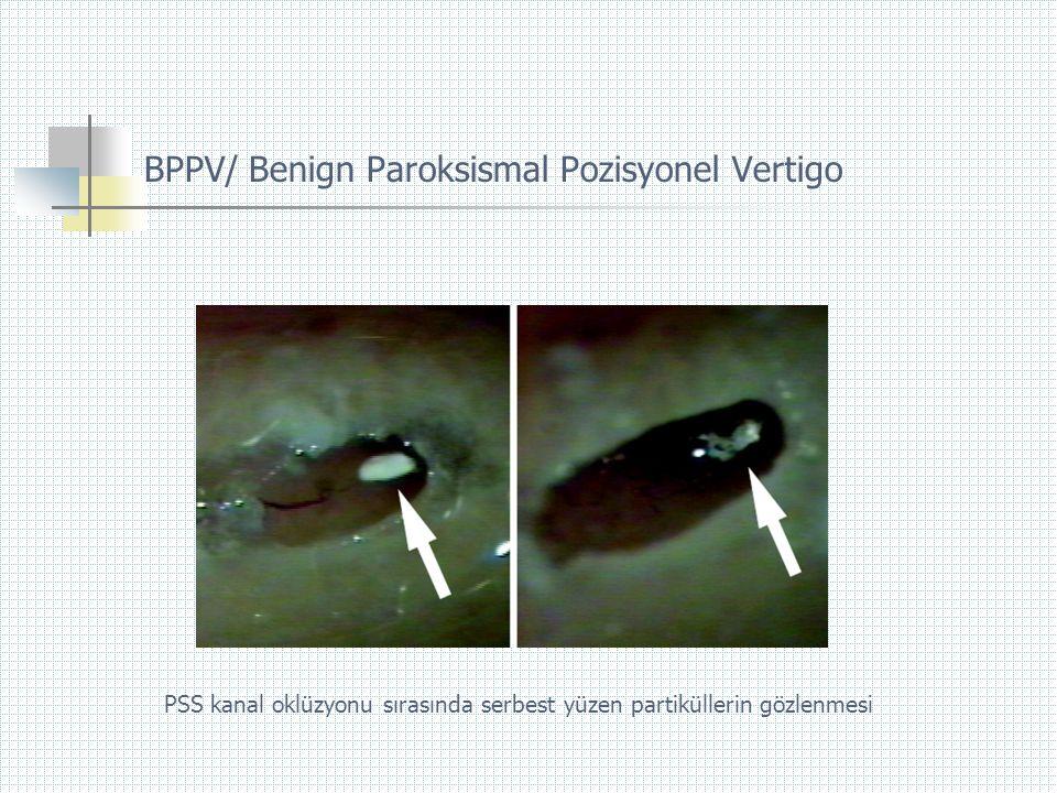 PSS kanal oklüzyonu sırasında serbest yüzen partiküllerin gözlenmesi BPPV/ Benign Paroksismal Pozisyonel Vertigo