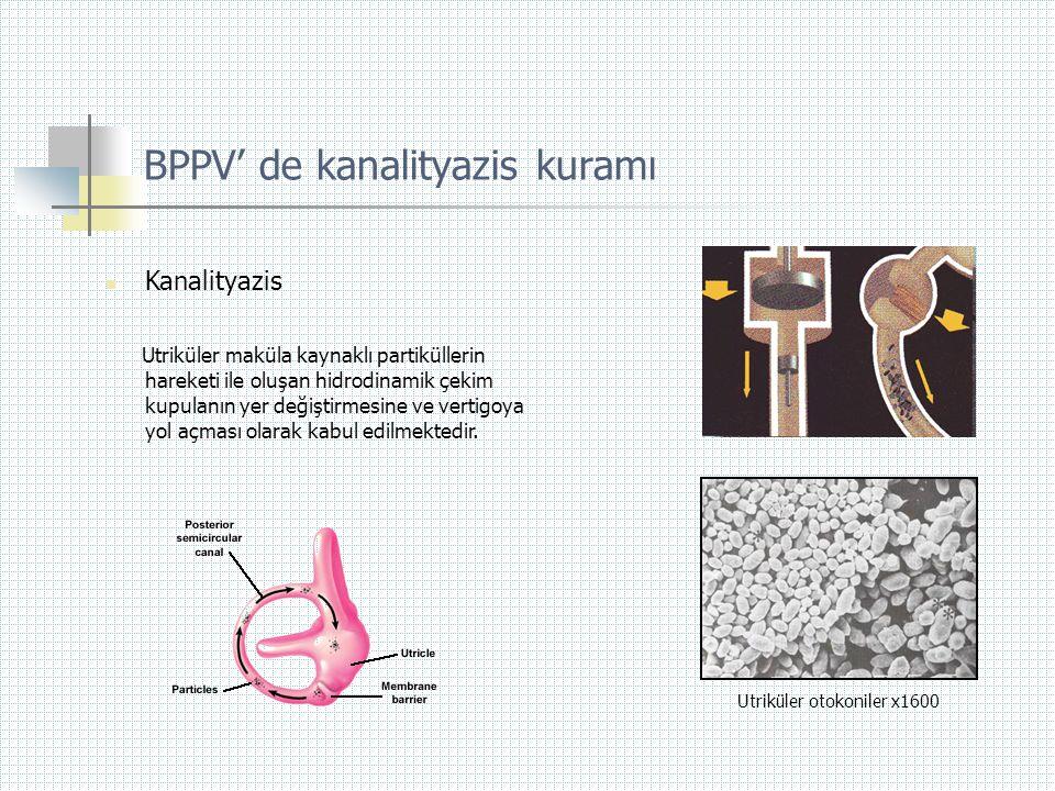 BPPV' de kanalityazis kuramı  Kanalityazis Utriküler maküla kaynaklı partiküllerin hareketi ile oluşan hidrodinamik çekim kupulanın yer değiştirmesin