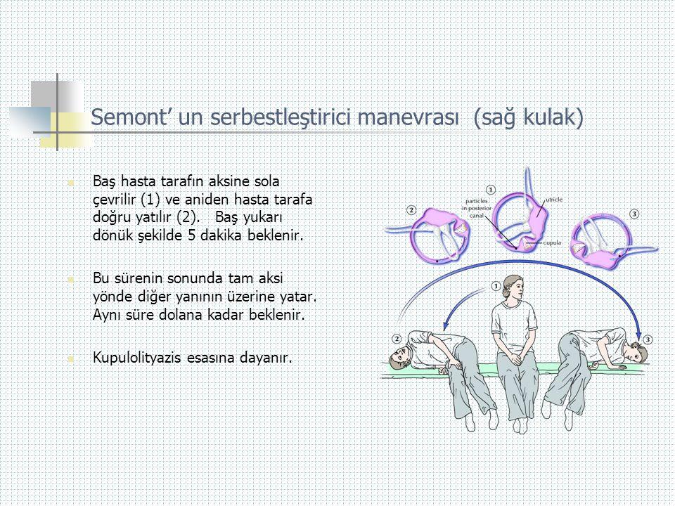 Semont' un serbestleştirici manevrası (sağ kulak)  Baş hasta tarafın aksine sola çevrilir (1) ve aniden hasta tarafa doğru yatılır (2). Baş yukarı dö