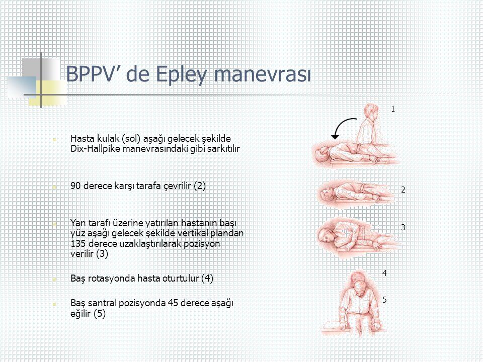 BPPV' de Epley manevrası  Hasta kulak (sol) aşağı gelecek şekilde Dix-Hallpike manevrasındaki gibi sarkıtılır  90 derece karşı tarafa çevrilir (2) 