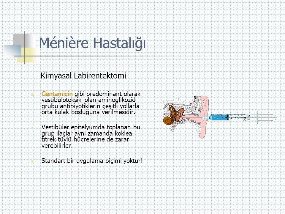 Ménière Hastalığı Kimyasal Labirentektomi  Gentamicin  Gentamicin gibi predominant olarak vestibülotoksik olan aminoglikozid grubu antibiyotiklerin
