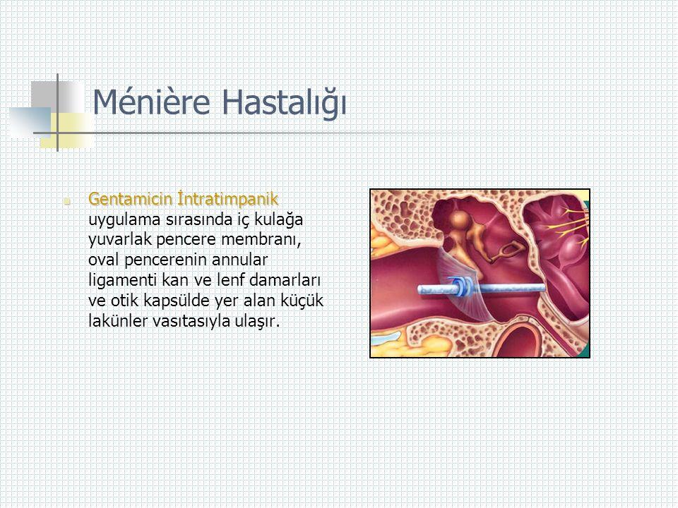 Ménière Hastalığı  Gentamicin İntratimpanik  Gentamicin İntratimpanik uygulama sırasında iç kulağa yuvarlak pencere membranı, oval pencerenin annula