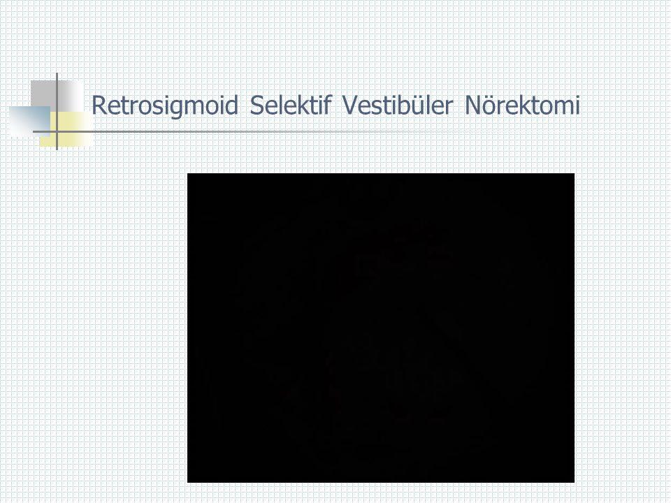 Retrosigmoid Selektif Vestibüler Nörektomi
