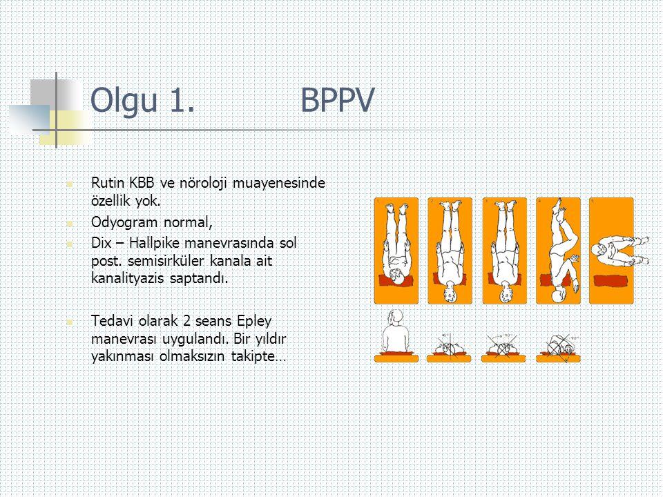 Olgu 1. BPPV  Rutin KBB ve nöroloji muayenesinde özellik yok.  Odyogram normal,  Dix – Hallpike manevrasında sol post. semisirküler kanala ait kana