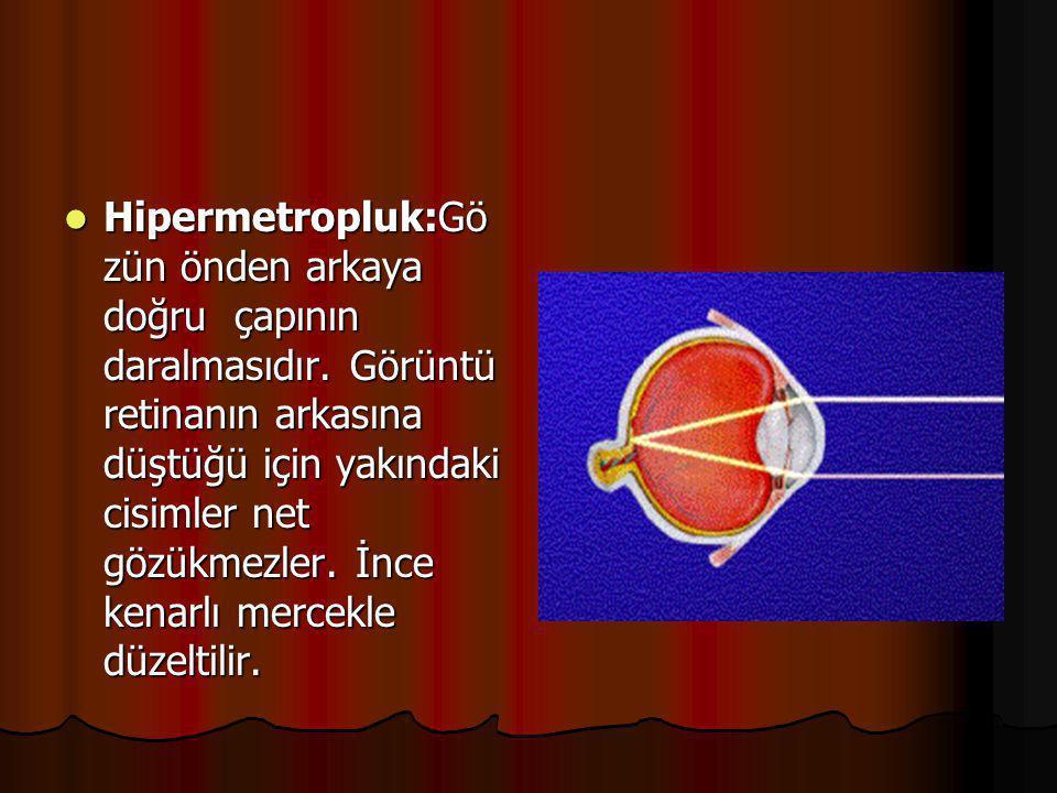 GÖZ KUSURLARI  Miyopluk:Gözün önden arkaya doğru normalden uzun olmasıdır. Görüntü sarı beneğin ve retinanın önüne düştüğünden uzaktaki cisimler net