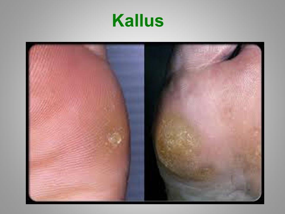 Kallus