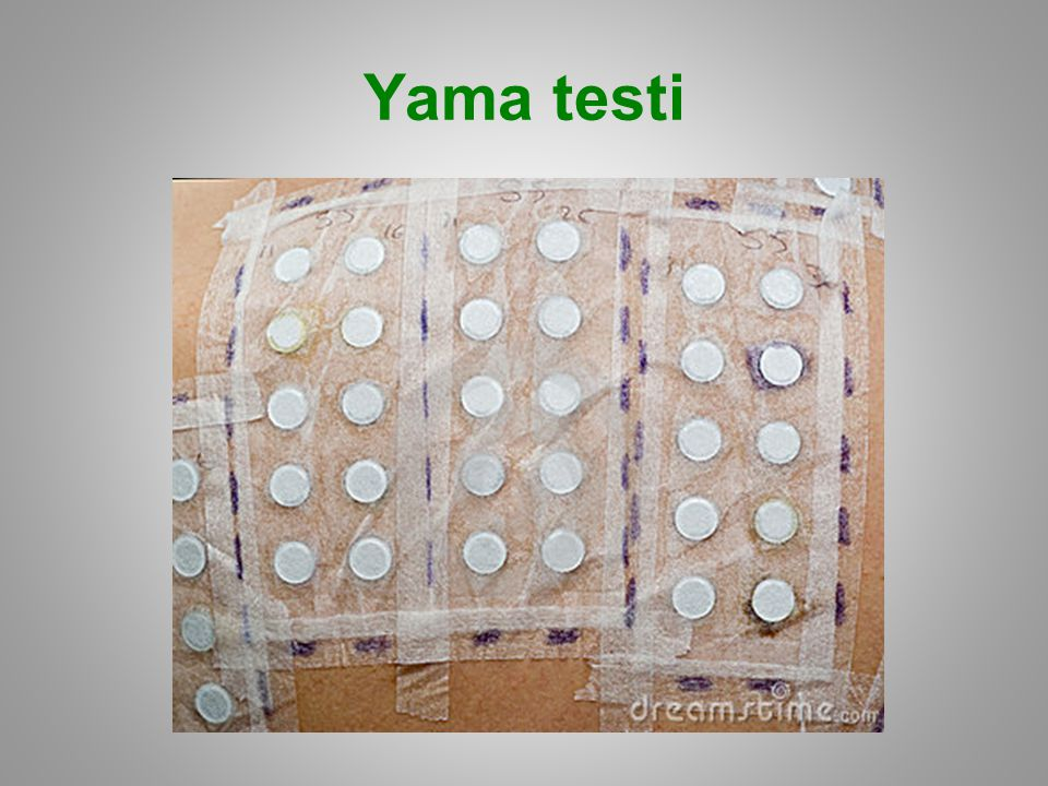 Yama testi