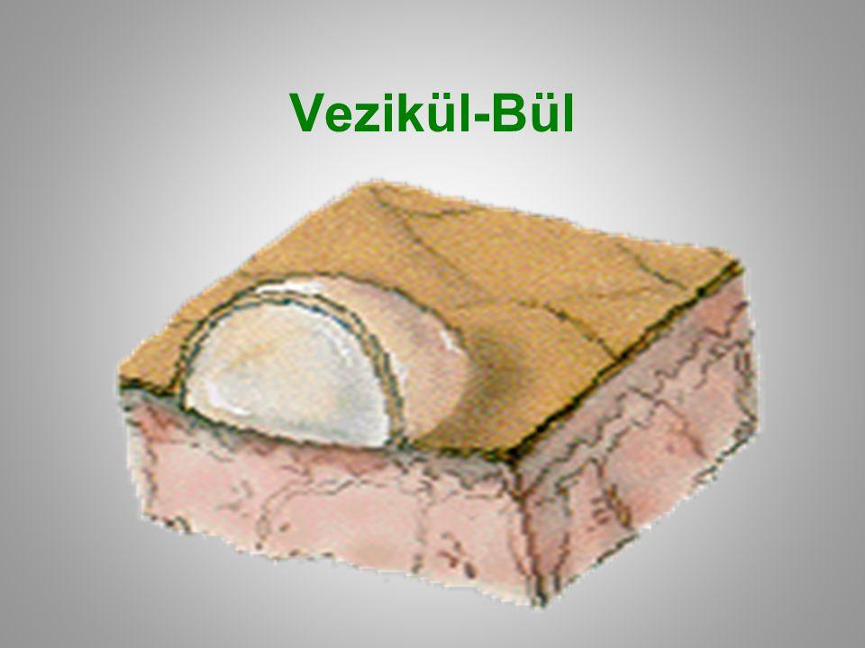 Vezikül-Bül