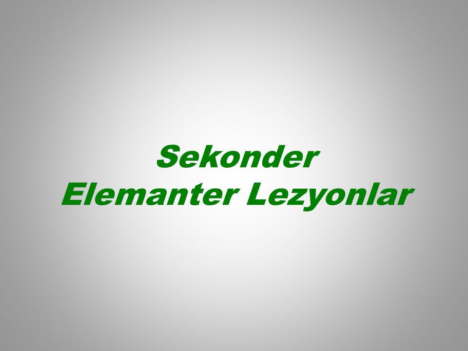 Sekonder Elemanter Lezyonlar
