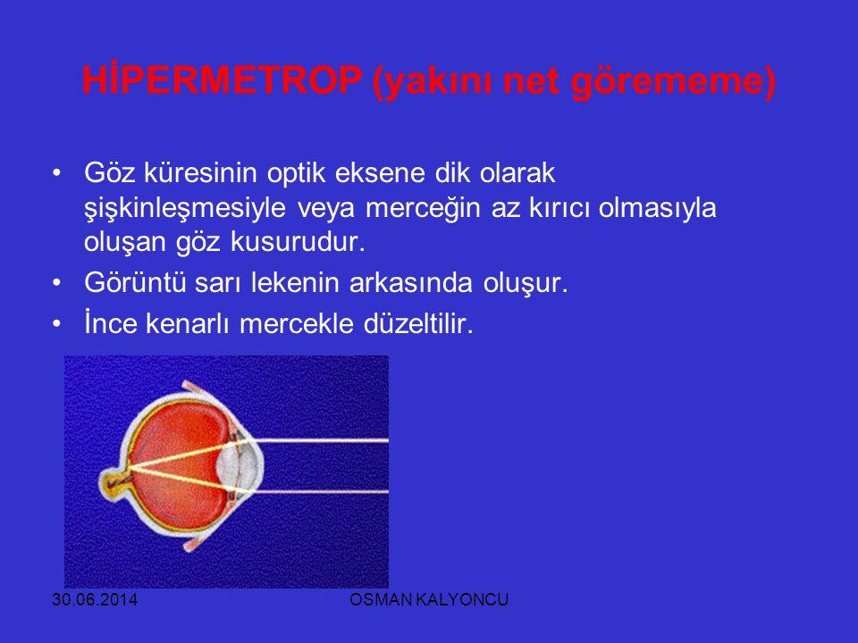 30.06.2014OSMAN KALYONCU HİPERMETROP (yakını net görememe) •Göz küresinin optik eksene dik olarak şişkinleşmesiyle veya merceğin az kırıcı olmasıyla o