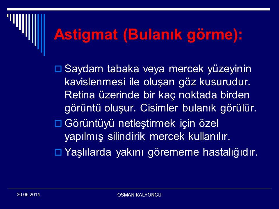 OSMAN KALYONCU 30.06.2014 Astigmat (Bulanık görme):  Saydam tabaka veya mercek yüzeyinin kavislenmesi ile oluşan göz kusurudur. Retina üzerinde bir k