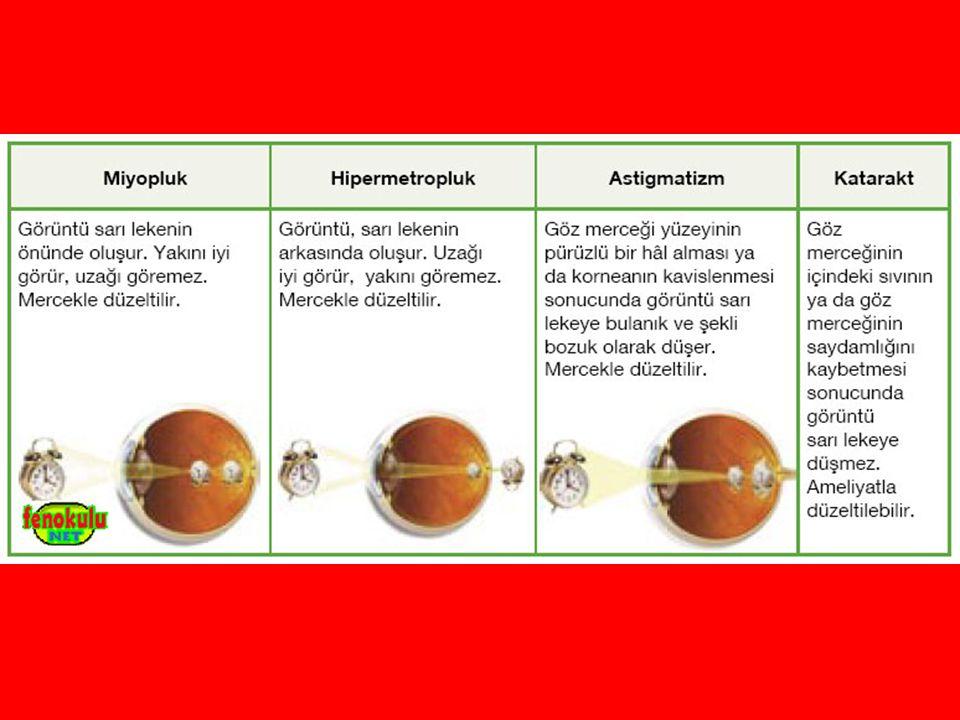Gözlük ve kontak lensler, bazı göz kusurlarının tedavisinden kullanılan teknolojik araçlardandır.