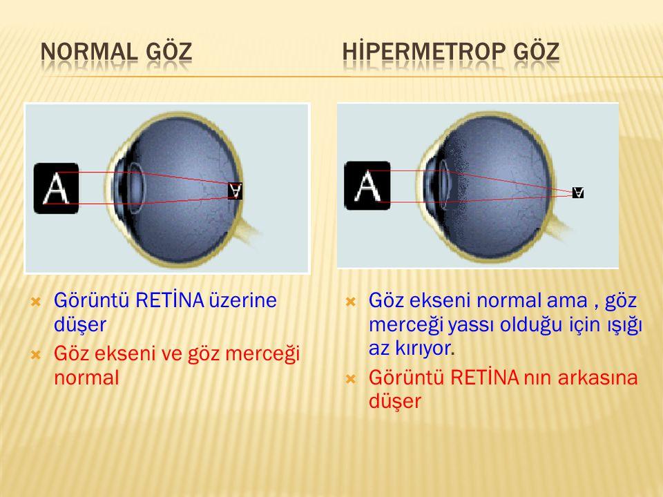  Görüntü RETİNA üzerine düşer  Göz ekseni ve göz merceği normal  Göz ekseni normal ama, göz merceği yassı olduğu için ışığı az kırıyor.  Görüntü R