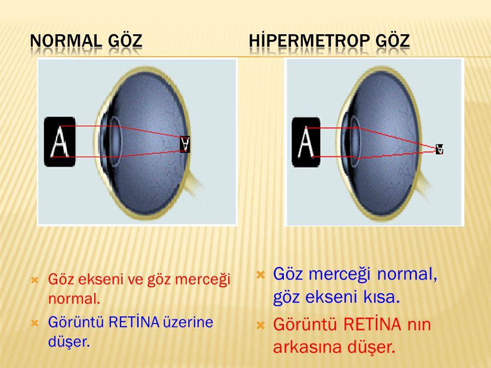  Göz ekseni ve göz merceği normal.  Görüntü RETİNA üzerine düşer.  Göz merceği normal, göz ekseni kısa.  Görüntü RETİNA nın arkasına düşer.