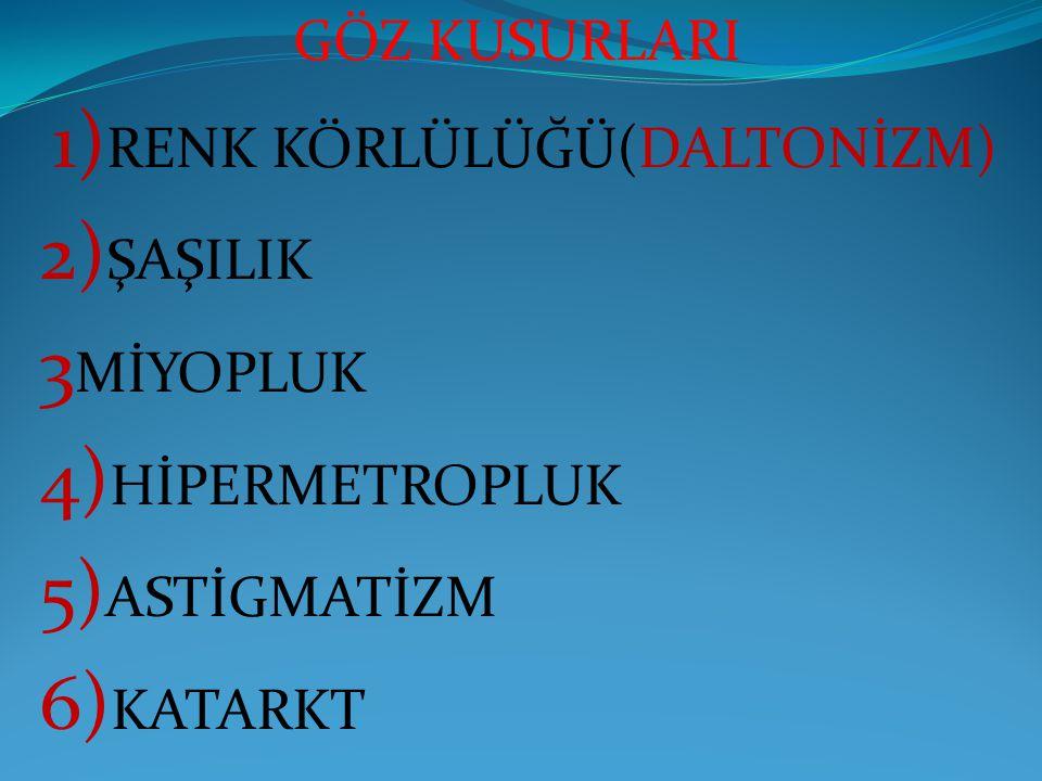 GÖZ KUSURLARI 1) RENK KÖRLÜLÜĞÜ(DALTONİZM) 2) ŞAŞILIK 3 MİYOPLUK 4) HİPERMETROPLUK 5) ASTİGMATİZM 6) KATARKT