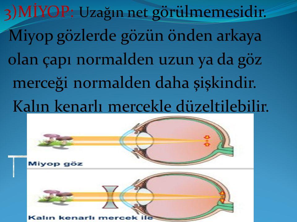 3)MİYOP: Uzağın net görülmemesidir. Miyop gözlerde gözün önden arkaya olan çapı normalden uzun ya da göz merceği normalden daha şişkindir. Kalın kenar